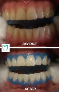 amazing teeth whitening results