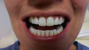 Laser Teeth Whitening - June 2014