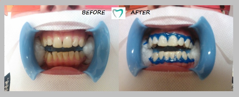 teeth whitening - result 02