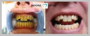 teeth whitening result 01