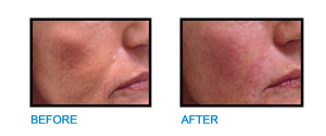 Cheek-Filler-Dublin-Before-and-After-photo