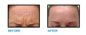 Frown-Lines-Malahide-Before-and-after-photo