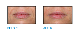 Nasolabial-Folds-Dublin-Before-and-after-photo