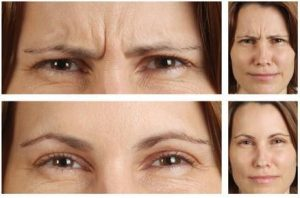 frown line - botox
