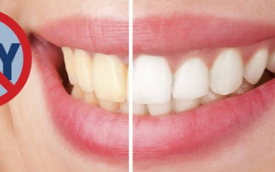 how to make your teeth whiter diy