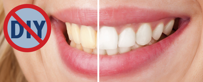 Teeth Whitening – DIY.